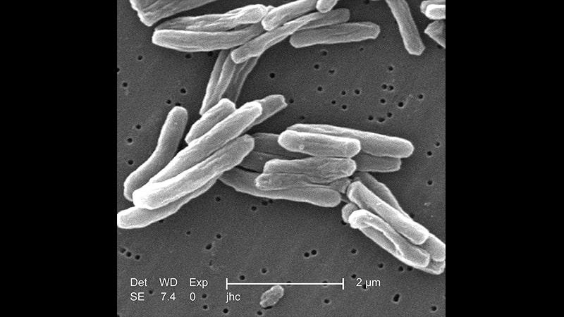 tuberkulosis - bakteri tbc