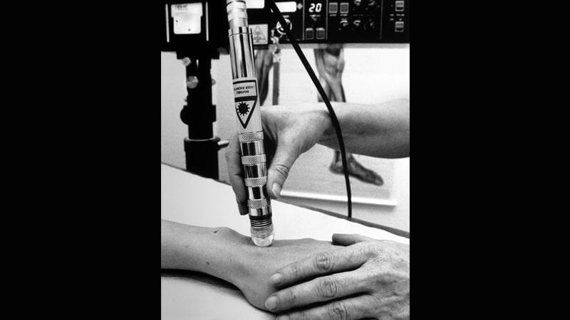 Terapi Alternatif Membantu Berhenti Merokok - Terapi Laser